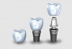 Teeth-Smiles-Dental-Implants