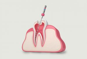 Teeth-Smiles-Root-canal-treatment