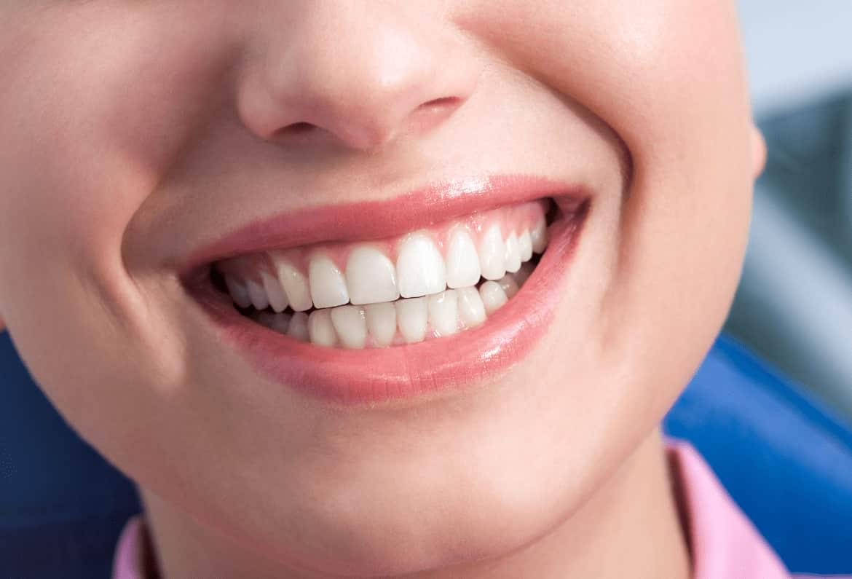 Healthy-gums-min