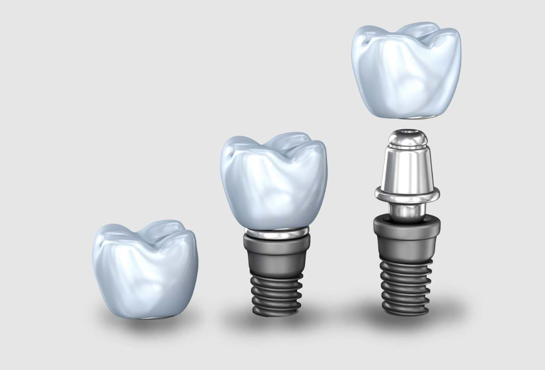 Teeth-Smiles-Dental-Implants-min